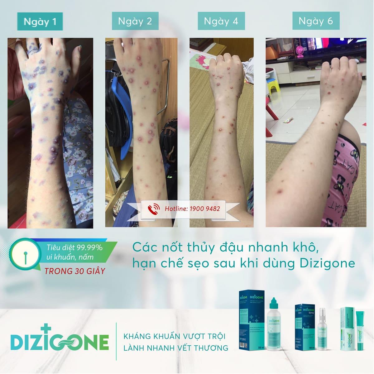 Dizigone - nhanh lành thủy đậu, không sẹo, không xót, không màu