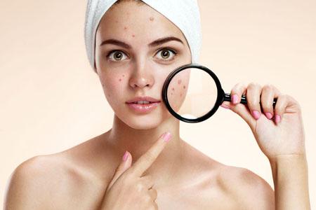 Dizigone - Hiệu quả với mụn viêm, viêm da