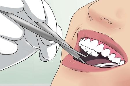 hình ảnh nhổ răng