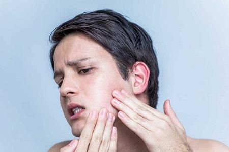 răng khôn nhiễm trùng