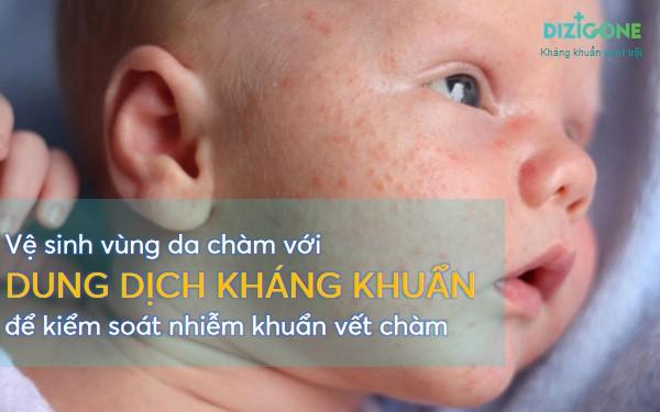 be-bi-cham-sua bé bị chàm sữa