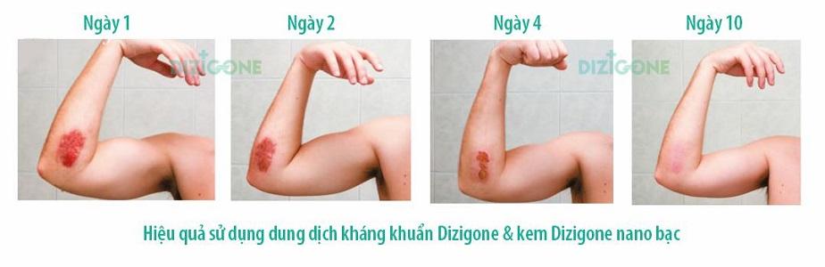 Dizigone và Dizigone nano bạc - nhanh lành vêt thương, không xót, không sẹo