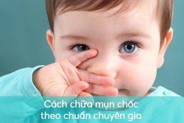 cach-chua-mun-choc cách chữa mụn chốc
