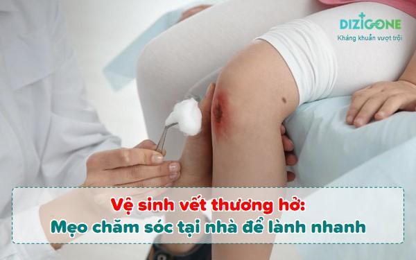 ve-sinh-vet-thuong-ho vệ sinh vết thương hở