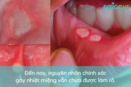 chua_nhiet_mieng_nhanh_khoi chữa nhiệt miệng nhanh khỏi