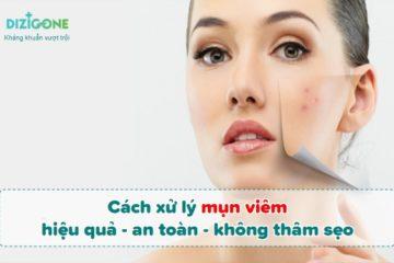 Cách xử lý mụn viêm hiệu quả, an toàn và không thâm sẹo