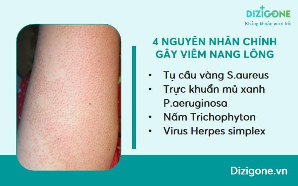 nguyen-nhan-viem-nang-long nguyên nhân viêm nang lông