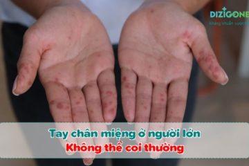 Tay-chân-miệng-ở-người-lớn-tay-chan-mieng-o-nguoi-lon