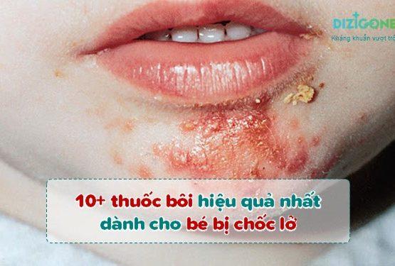 10+ thuốc bôi hiệu quả nhất dành cho bé bị chốc lở