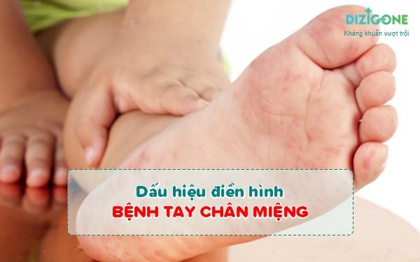 dấu hiệu tay chân miệngdau-hieu-tay-chan-mieng