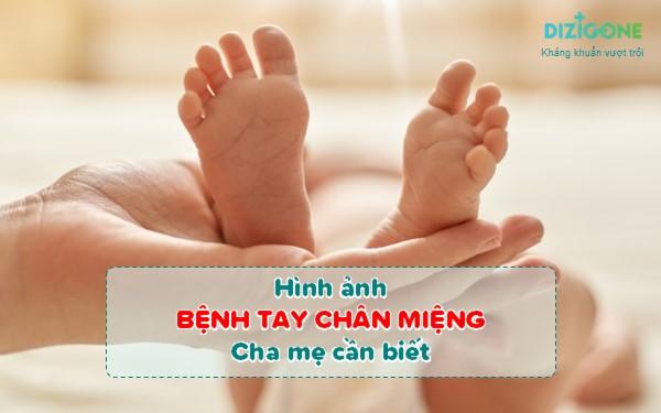 hình ảnh bệnh tay chân miệng hinh-anh-benh-tay-chan-mieng