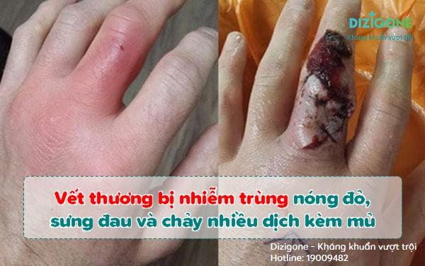 vết thương bị nhiễm trùngvet-thuong-bi-nhiem-trung