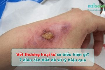 vết thương hoại tửvet-thuong-hoai-tu
