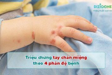triệu chứng tay chân miệngtrieu-chung-tay-chan-mieng