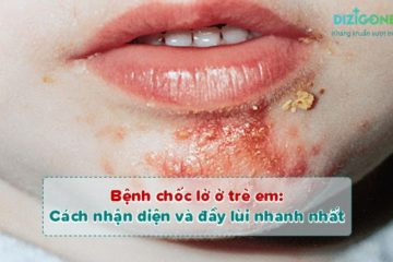 bệnh chốc lở ở trẻ em benh-choc-lo-o-tre-em