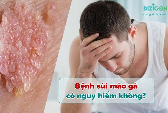 Bệnh sùi mào gà có nguy hiểm không? 4 biến chứng dễ gặp và 3 bước điều trị ngăn ngừa