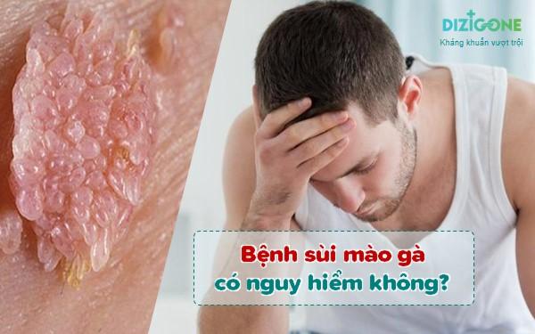 bệnh sùi mào gà có nguy hiểm không benh-sui-mao-ga-co-nguy-hiem-khong