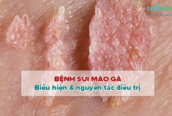 Sùi mào gà: Biểu hiện bệnh và nguyên tắc điều trị để khỏi nhanh